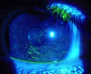 Erosión corneal