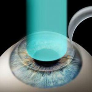 ¿Puedo llevar lentes de contacto si estoy operado de láser?