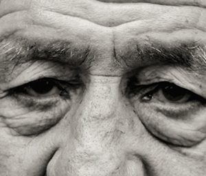 (Castellano) Cirugía estética palpebral o Blefaroplastia