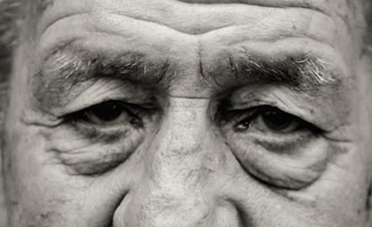 Cirugía estética palpebral o Blefaroplastia