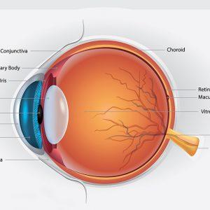 (Castellano) Tratamiento de retina con láser