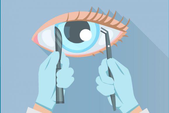 (Castellano) Cirugía láser ocular