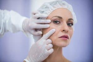 Cirugía estética palpebral