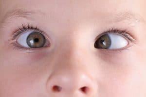 Cuando operar estrabismo infantil