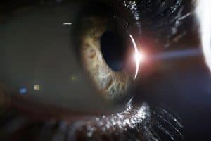 Fotocoagulacion de la retina