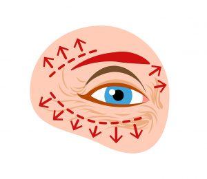 Postoperacion blefaroplastia